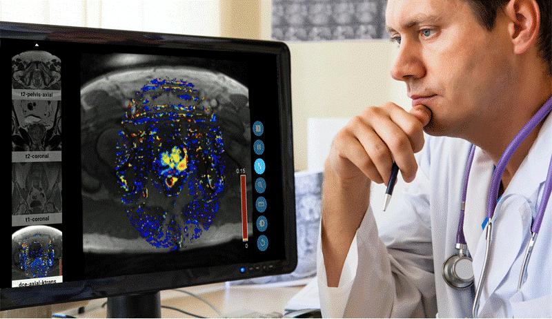 MRI PRO IMAGE